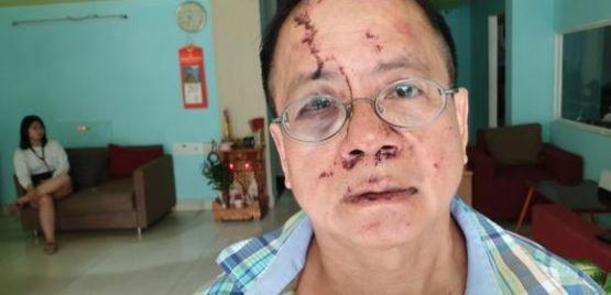 Một Việt kiều Đức bị nhóm thanh niên đánh tại quán karaoke ở TP.HCM
